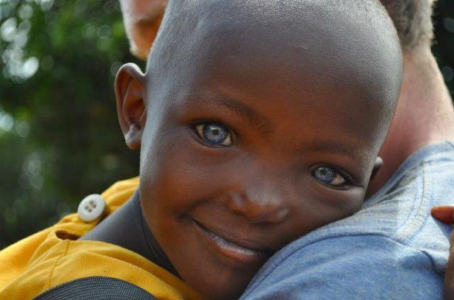 Criança negra com olho azul.